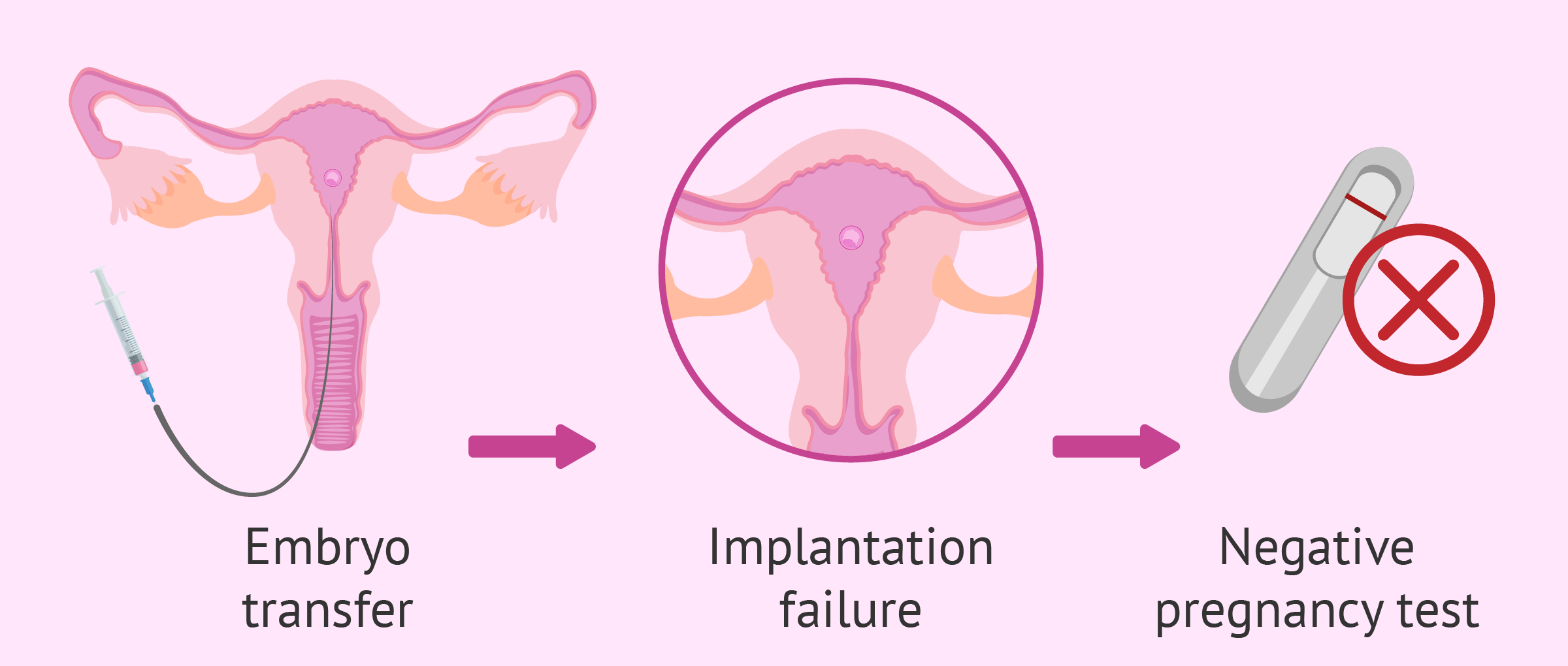 Repeated implantation failures after IVF