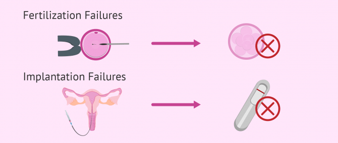Recurrent IVF Failure: Causes and Solutions to be Parents