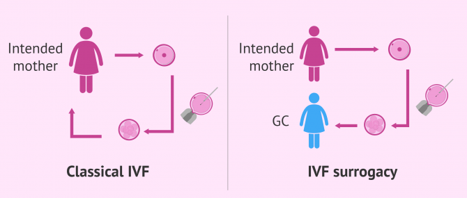 How does IVF surrogacy work?