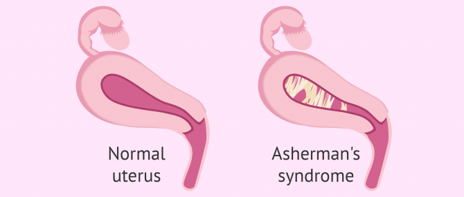 Normal uterus vs. uterine adhesions