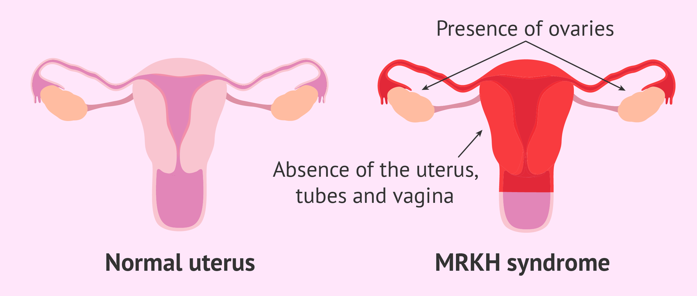 Comparison between normal uterus and MRKH syndrome