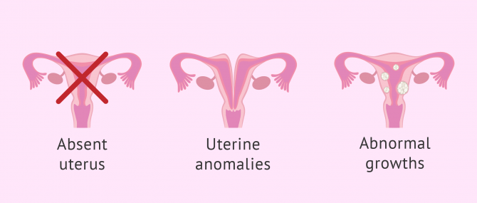Uterine diseases and anomalies