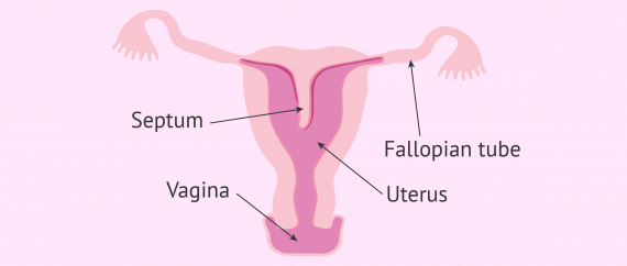 Diagram of a septate uterus