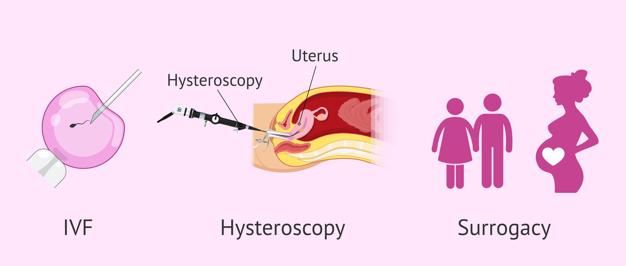 Pregnancy options with uterine abnormalities