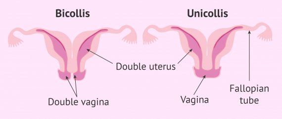 Uterus didelphys bicollis vs. unicollis