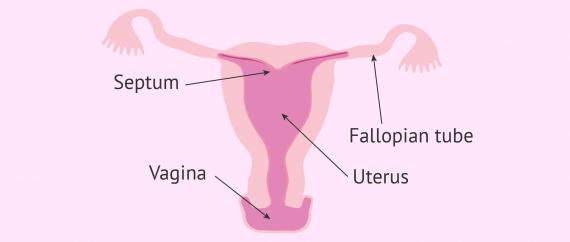 What is an arcuate uterus?