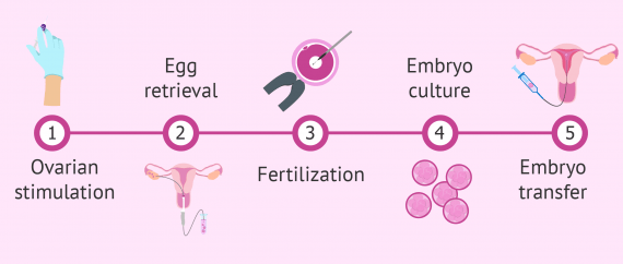 IVF surrogacy process step by step