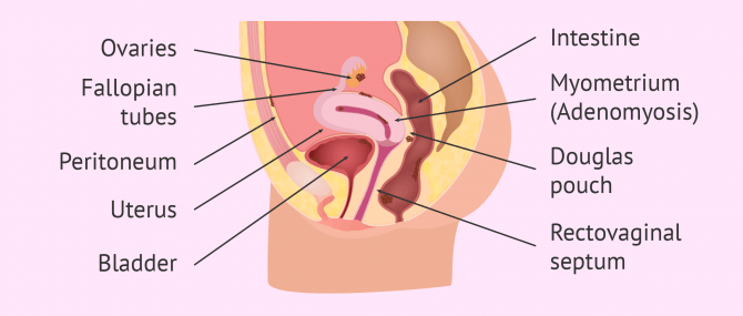 Location of endometriosis