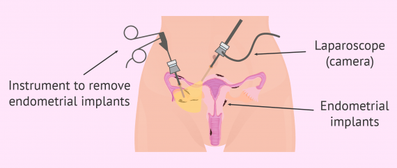 Treating endometriosis with surgery
