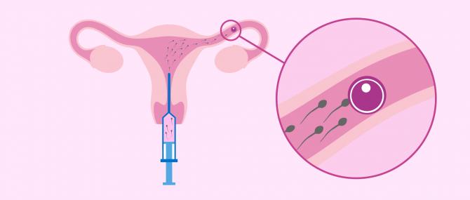 IUI in surrogacy
