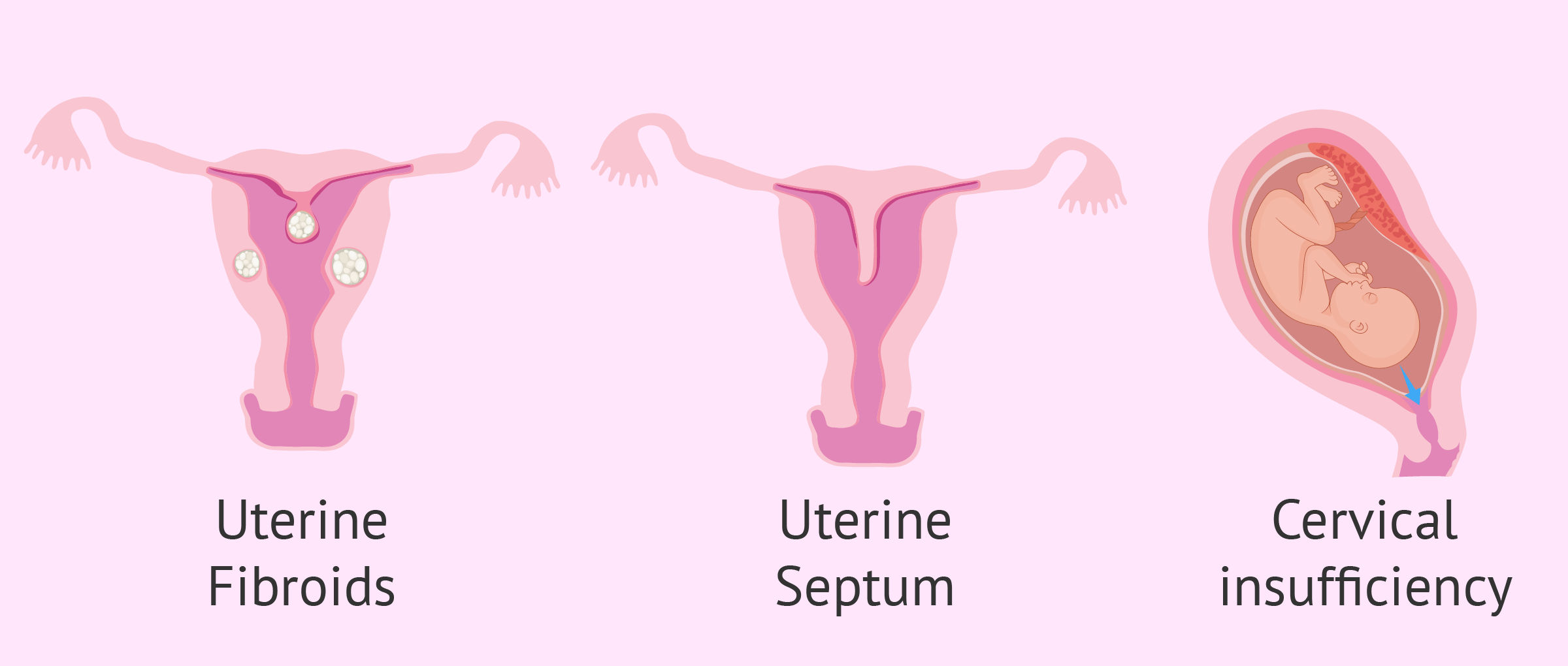 Uterine malformations that cause repeated miscarriages