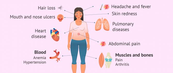 Imagen: lupus symptoms