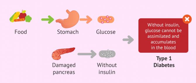 Imagen: type 1 diabetes