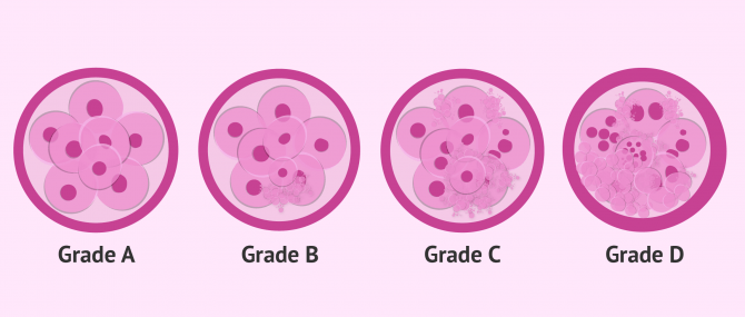 Imagen: embryo quality classification