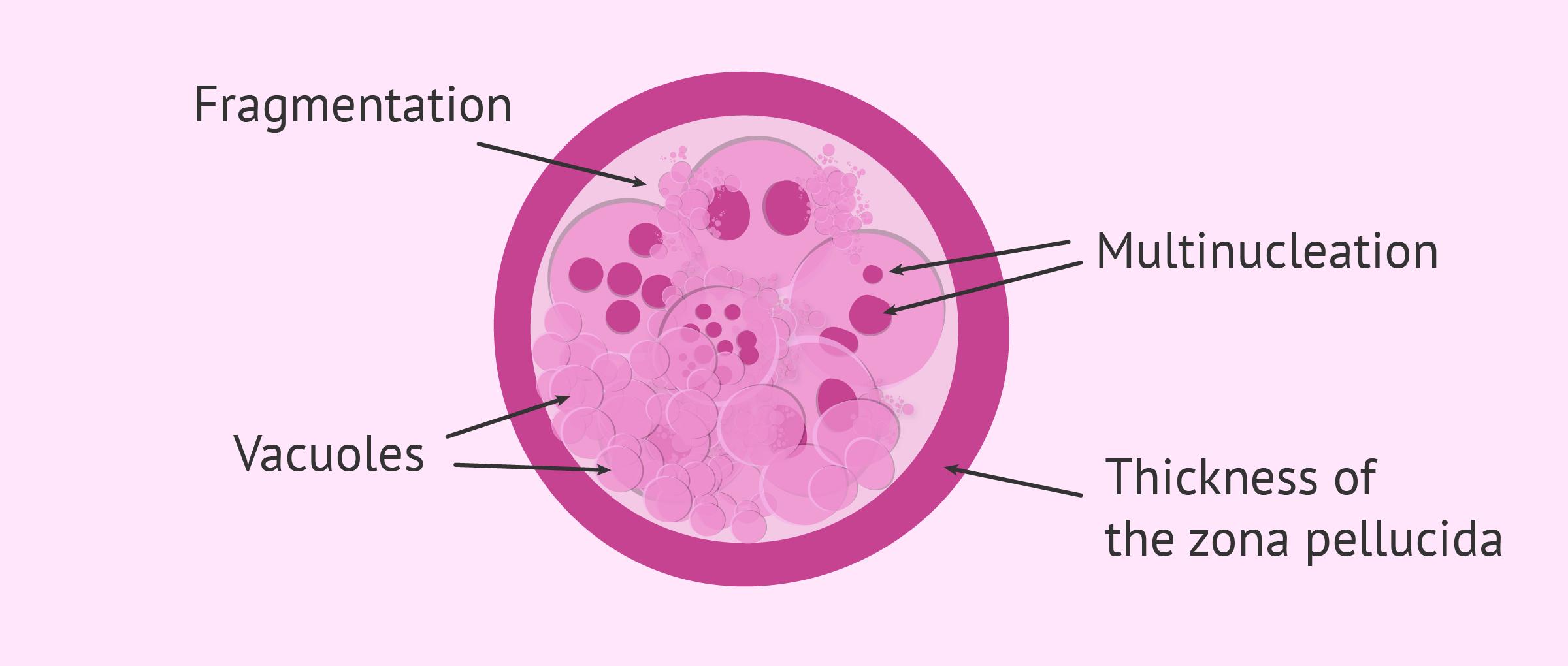Morphological criteria for embryon grading