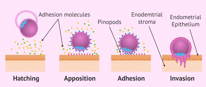 Imagen: Implantation process