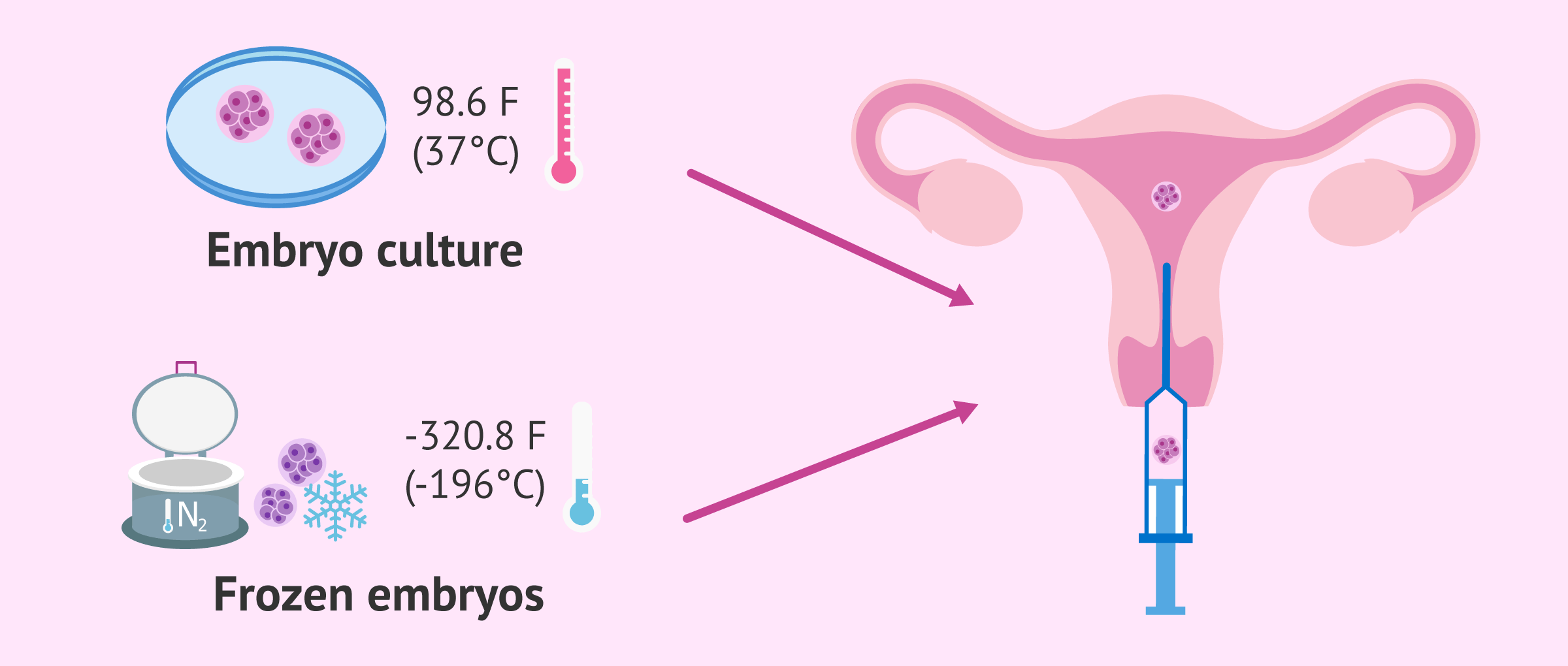 Fresh or frozen embryo transfer