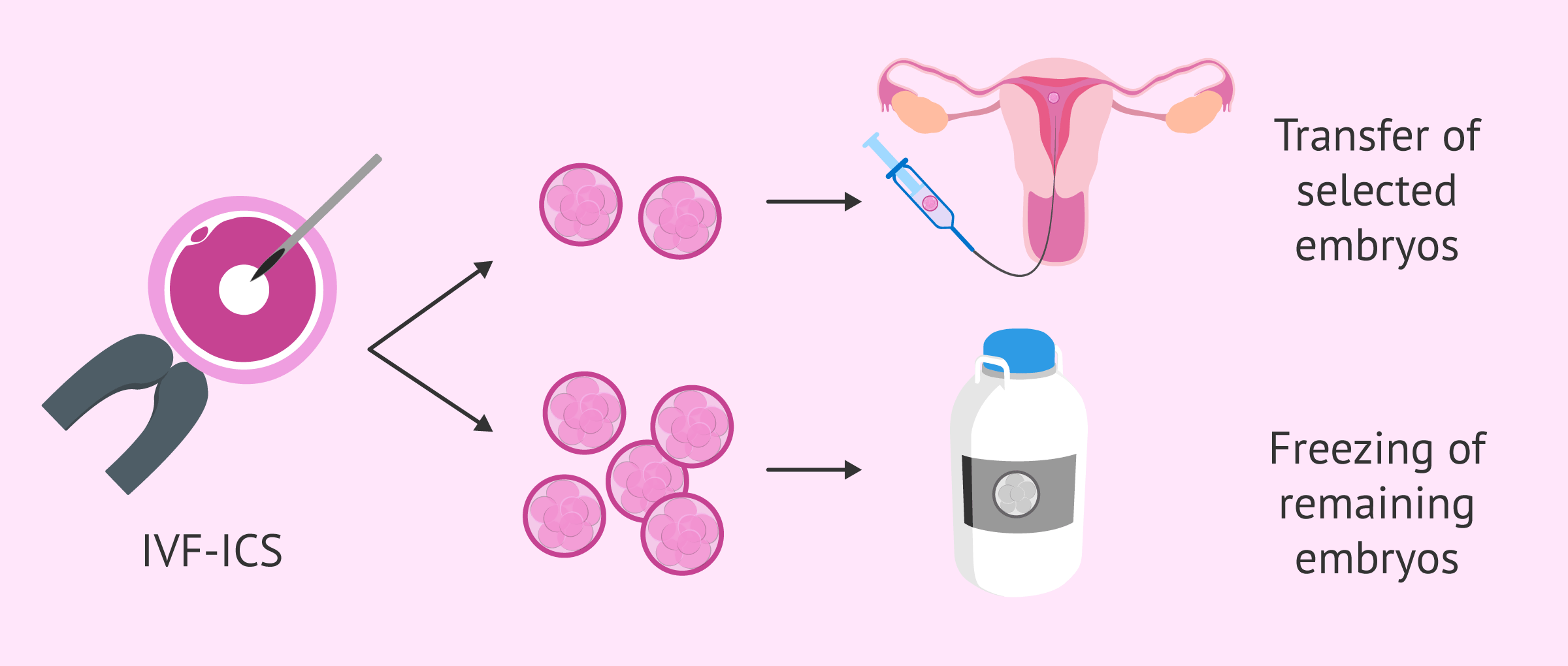 Cryopreservation of remaining embryos