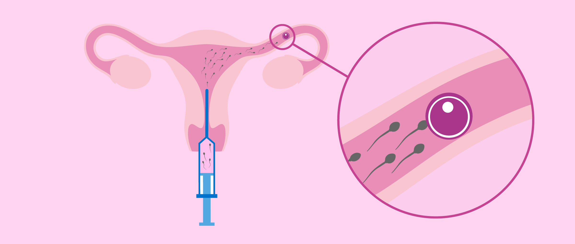 What is Intrauterine Artificial Insemination?