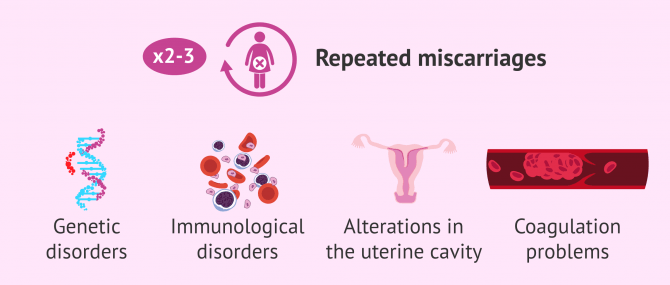 Imagen: Recurrent pregnancy loss: causes