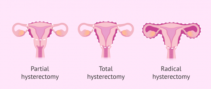 Becoming a Mother after Hysterectomy: How to Do it?