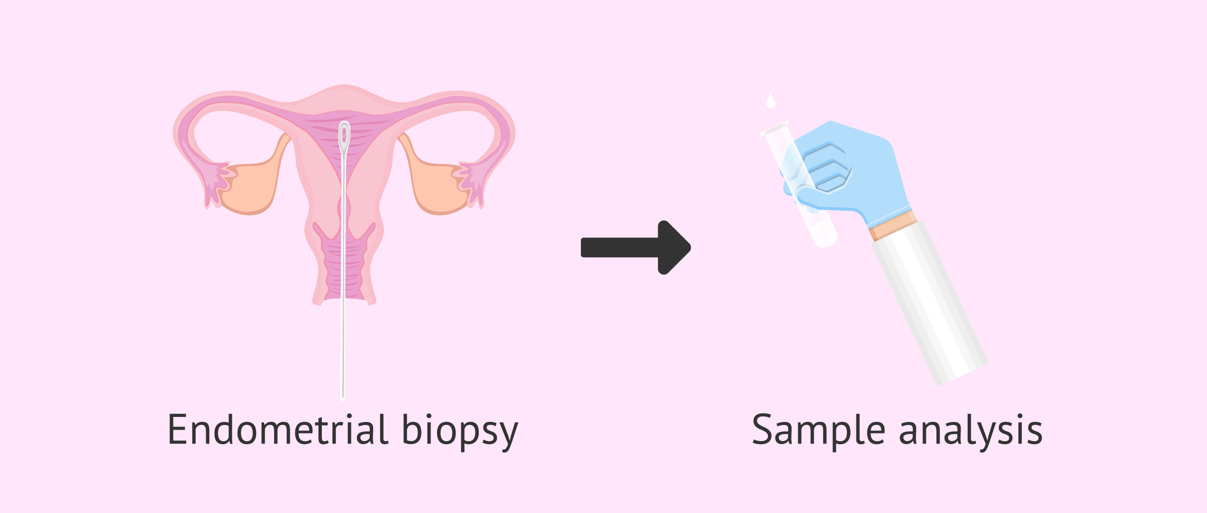 Endometrial biopsy technique