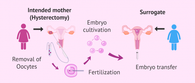 Imagen: In vitro fertilization with own eggs