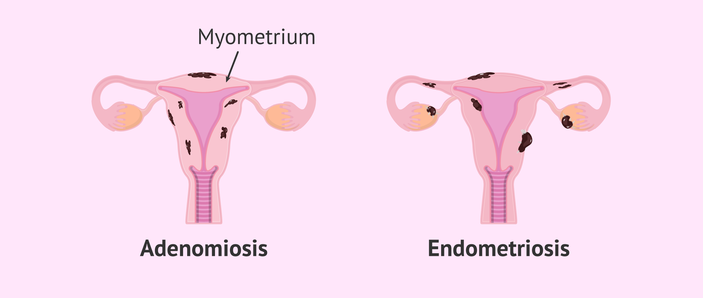 Uterus with adenomyosis and uterus with endometriosis