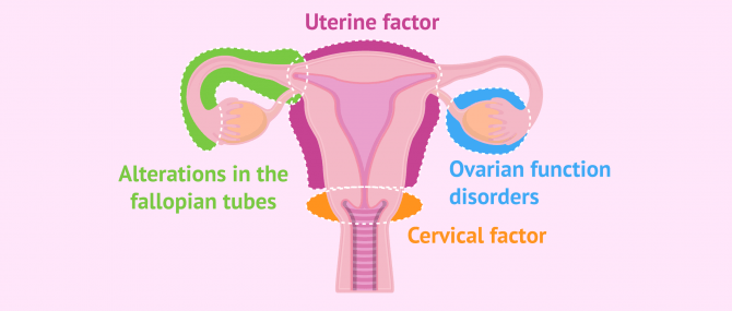 Imagen: Main causes of female sterility