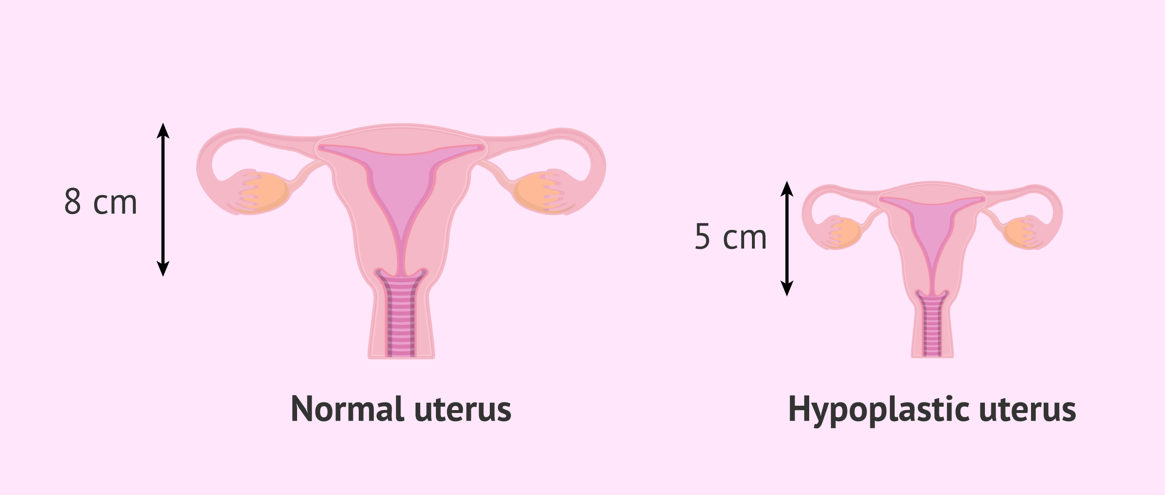 What is a hypoplastic uterus?