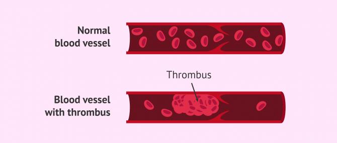 Imagen: Thrombophilia in pregnancy