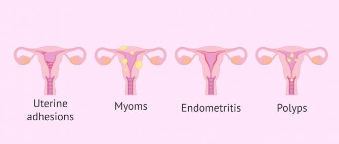 Imagen: uterine adhesions and polyps