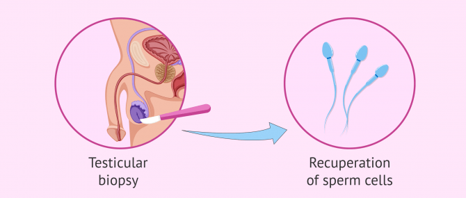 Imagen: Testicle biopsy to check sperm production