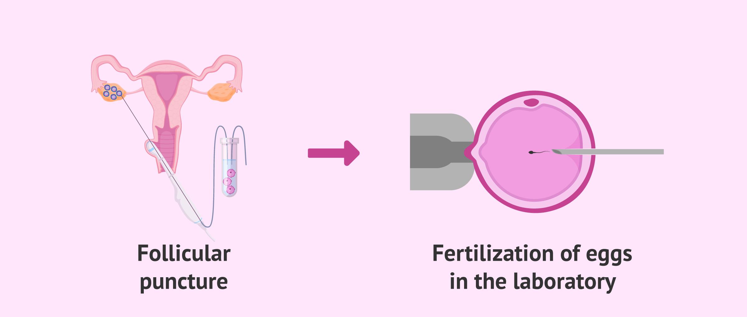 Follicular punction and fertilization