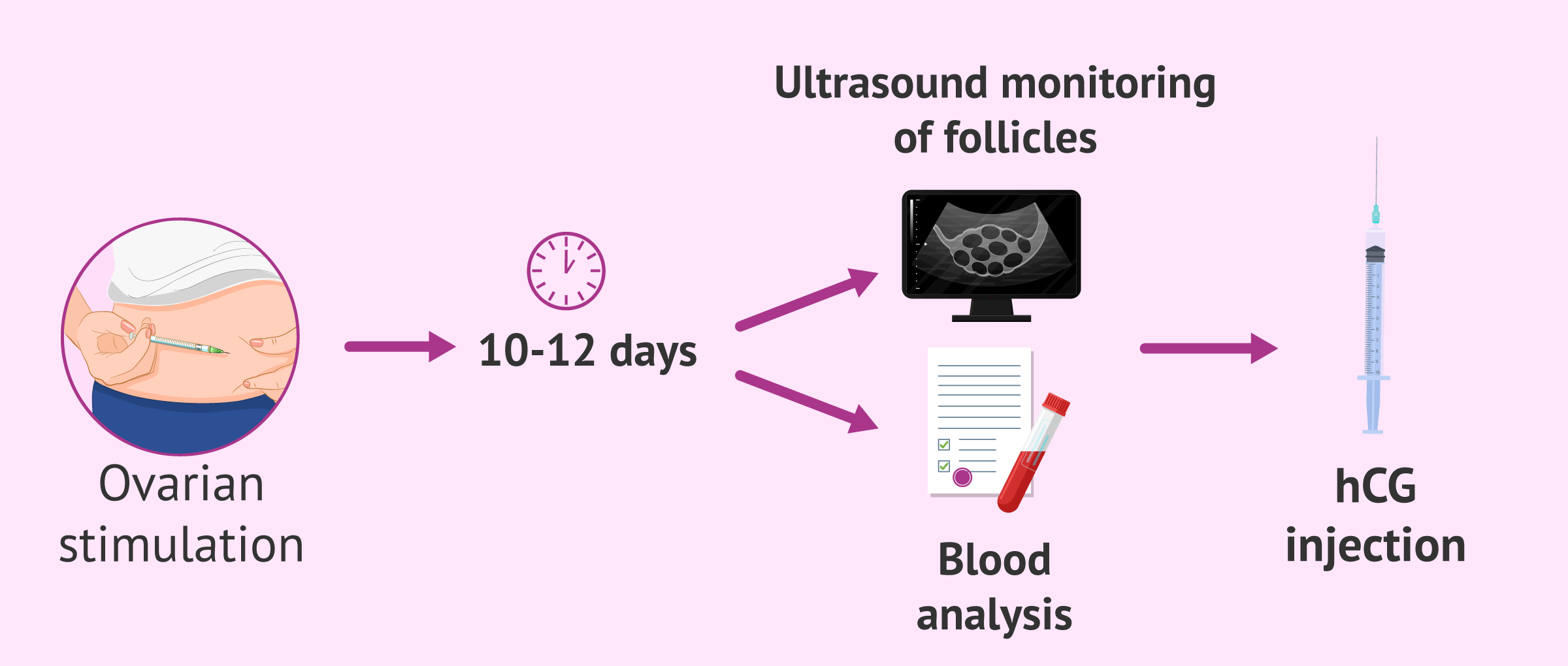 Scheduling the ovum pick-up