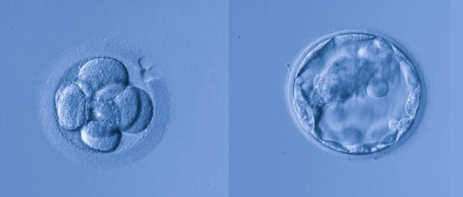 Imagen: Embryos for transfer