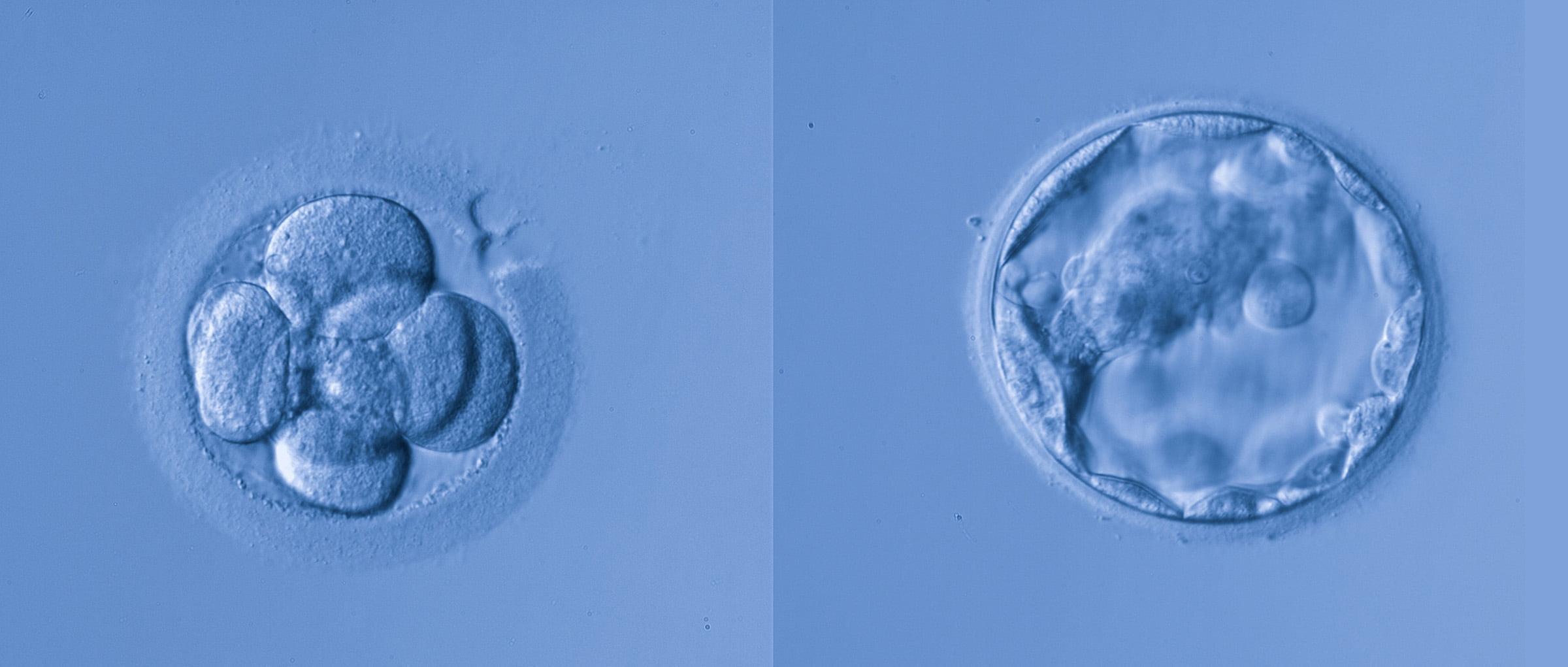 Embryos for transfer