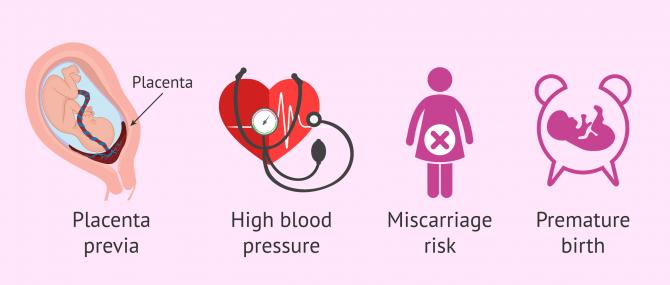 Imagen: Avoiding multiple pregnancy in surrogacy