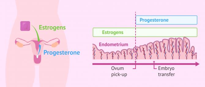Imagen: Endometrial preparation for embryo transfer