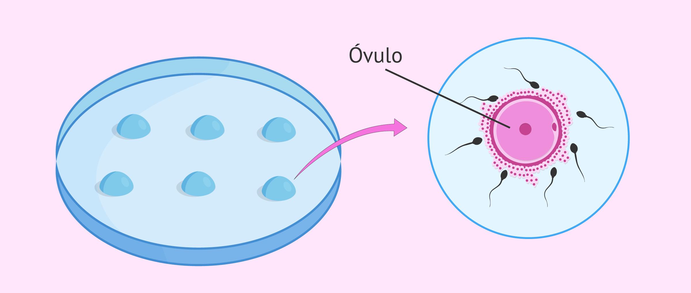 ¿En qué consiste la fecundación in vitro o FIV?