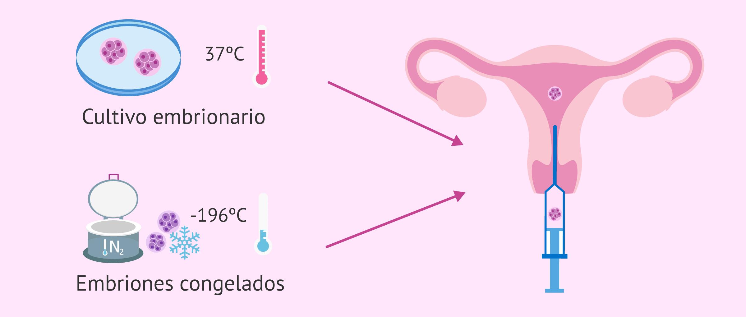 La transferencia de embriones