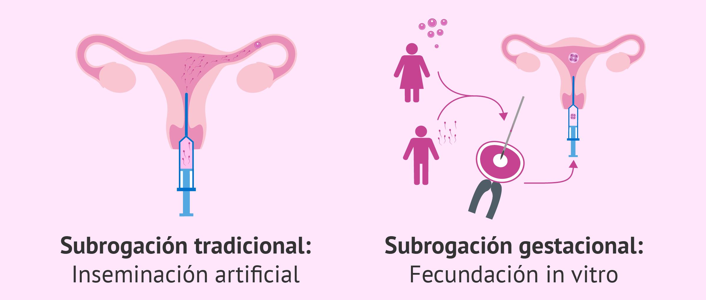 Gestación subrogada tradicional y subrogación gestacional