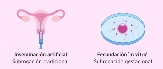 Las técnicas de reproducción asistida y su uso en gestación subrogada