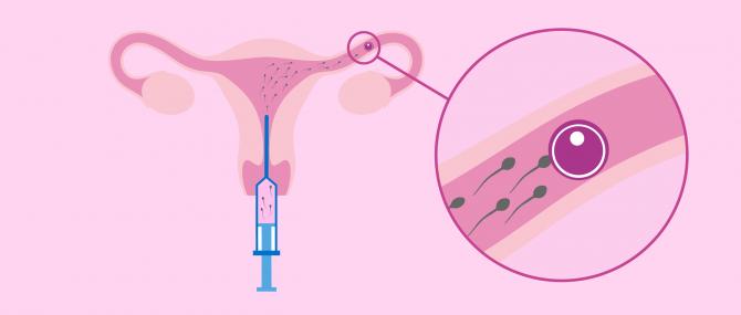 ¿Qué es la inseminación artificial intrauterina?