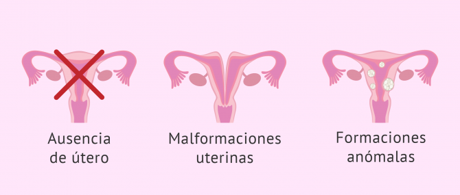 Gestación subrogada por enfermedades que impiden el embarazo