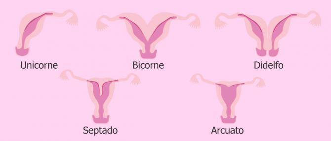Malformaciones del útero: ¿afectan al embarazo?, ¿existe tratamiento?