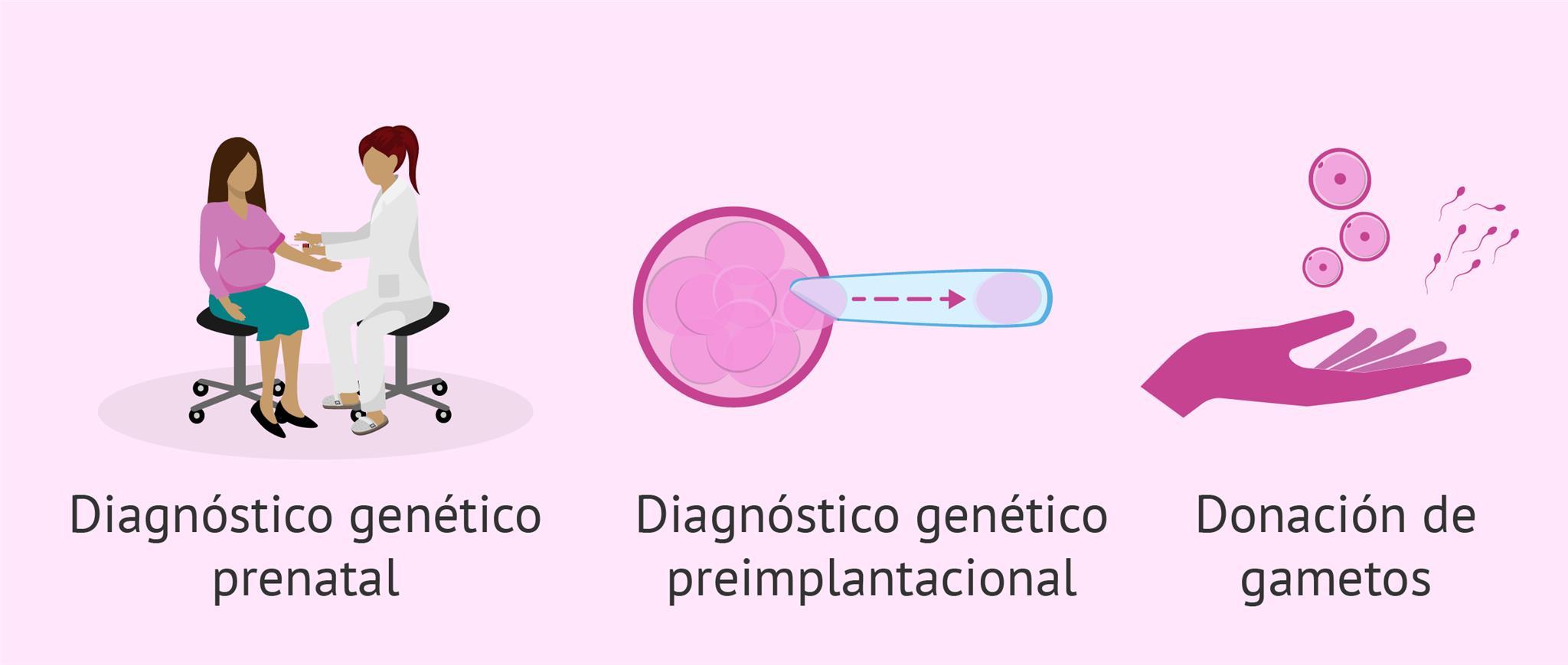 Soluciones posibles para los abortos recurrentes de causa genética