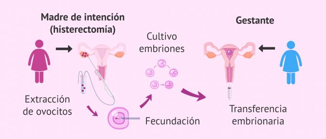 Imagen: fecundación in vitro con óvulos propios