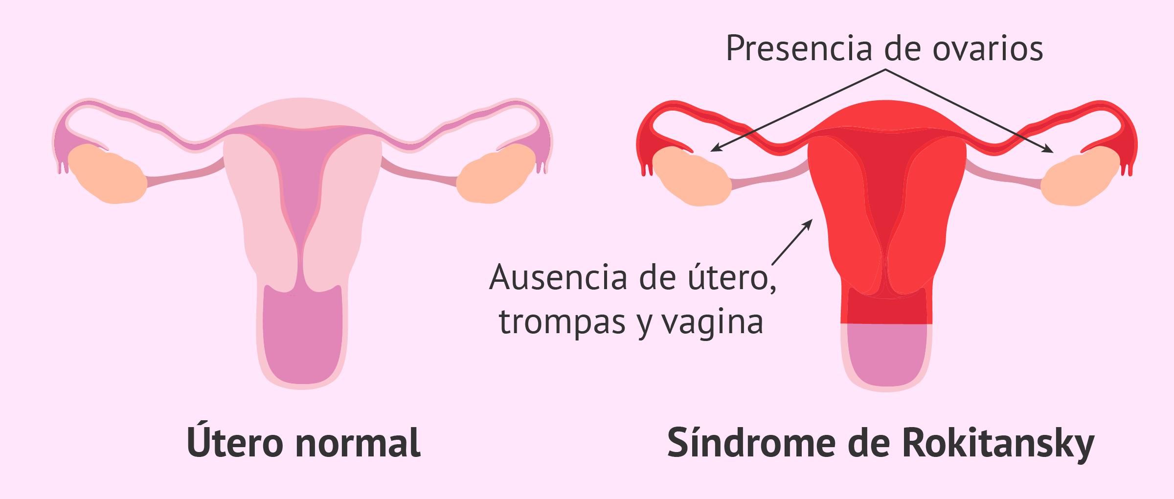 Ausencia de vagina, útero y trompas