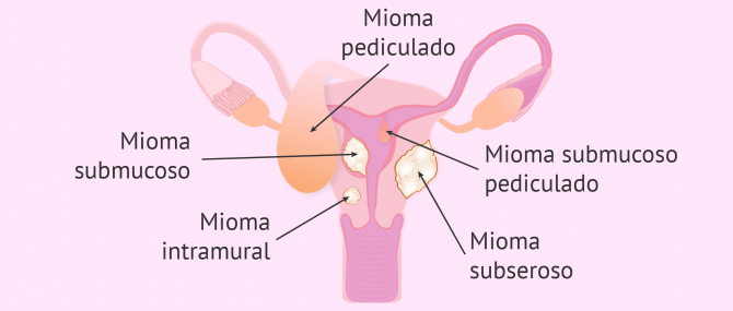 Tipos de miomatosis uterina